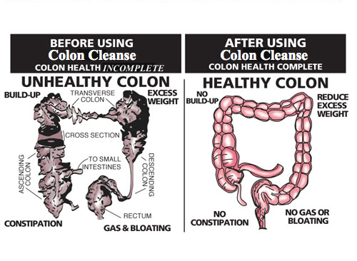 What Are The Best Natural Colon Cleansers