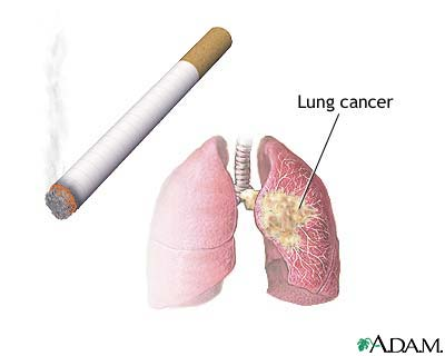 how to know if you have lung cancer