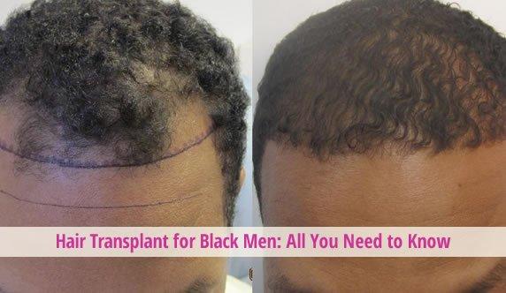 black men hair transplant